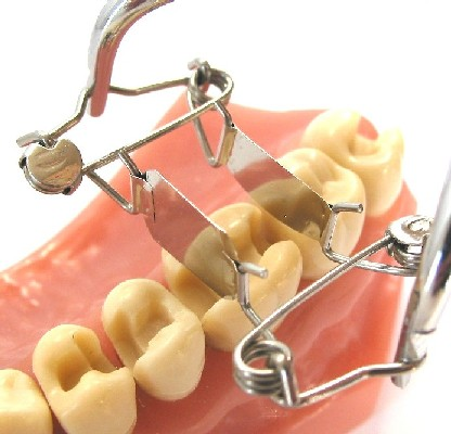 Bestellen Sie die neue Zahn-Matrize 10c für einseitig tiefe Karies und sparen Sie Zeit und Geld