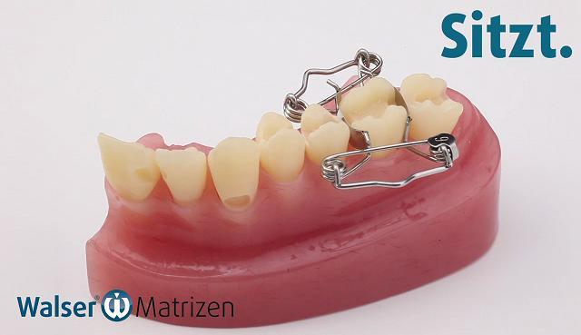 Setzen Sie die Zahn-Matrize O-Form ein, die mit einer Handbewegung automatisch am Zahn anliegt