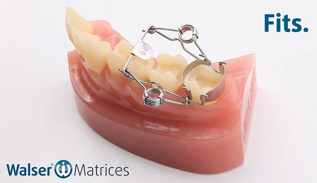 Insert the on-shape tooth matrix, which is automatically applied to the tooth with a hand movement