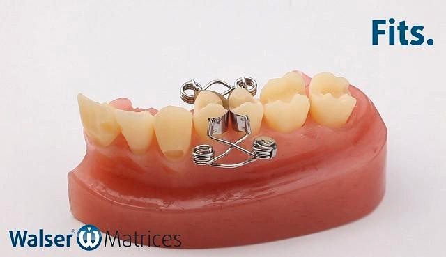 Insert the x-shape tooth matrix, which is automatically applied to the tooth with a hand movement