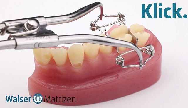 Mit der Matrizenzange die Zahn-Matrize spannen und über den Zahn stülpen