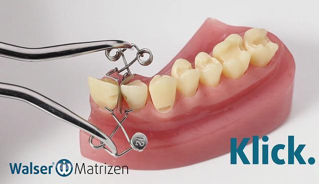 Mit der Zahn-Matrize für Frontzähne legen Sie schnell und einfach Zahnfüllungen
