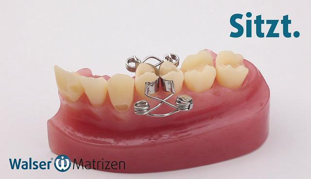 Legen auch Sie zwei Füllungen gleichzeitig mit der Zahn-Matrize die sich auch für Kinder hervorragend eignet