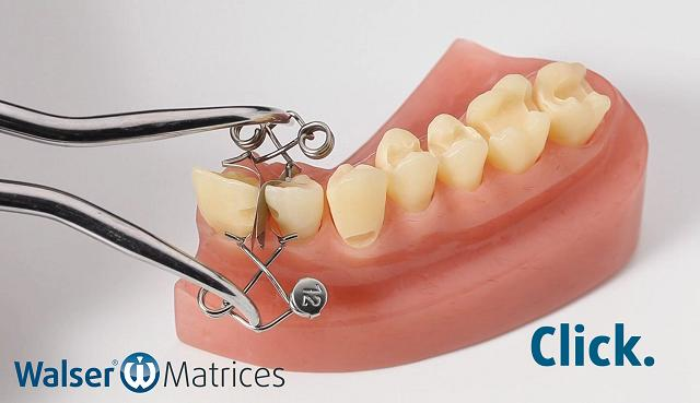 Using the matrix forceps, tighten the tooth matrix xf-shape and push it over the tooth