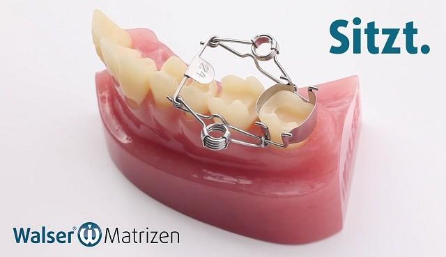 Die Walser Zahn-Matrize spannt sich automatisch um den Zahn wie ein Korsett