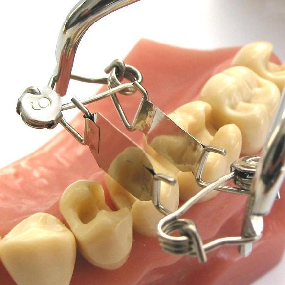 Bestellen Sie jetzt die neue Zahn-Matrize 6c für einseitig tiefe Karies und sparen Sie Zeit und Geld