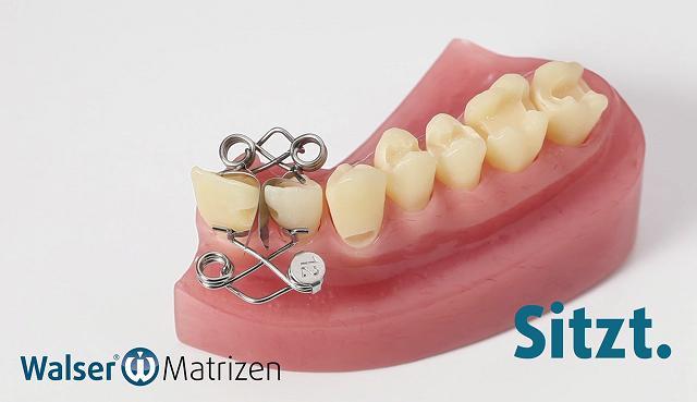 Sparen Sie Zeit und Geld mit der Zahn-Matrize für Frontzähne