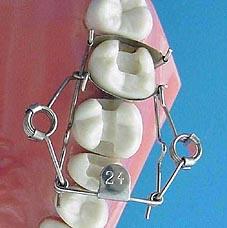 Forme en ON matrice pour dent de Dr. Walser Dental