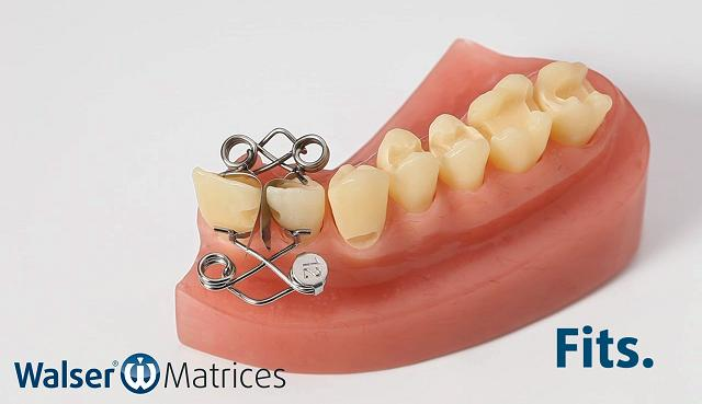 Insert the xf-shape tooth matrix, which is automatically applied to the tooth with a hand movement